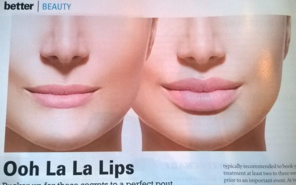 lips-before-and-after